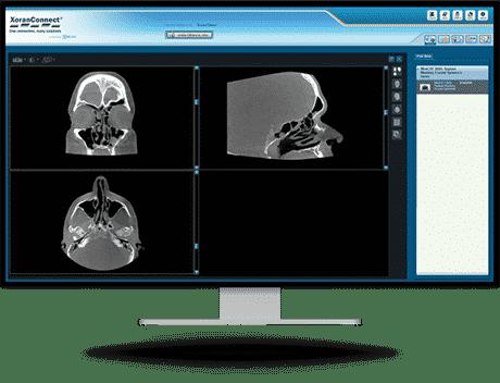 XoranConnect-image-Screen
