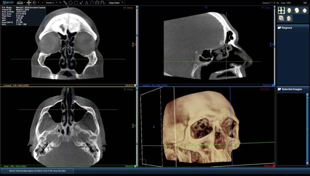 Sinus CT Scan Example