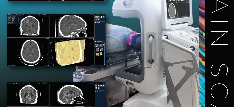xCAT IQ Brain Scans